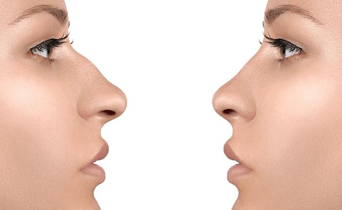 Operacija nosu odslej s povračilom stroškov zdravljenja