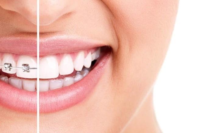 Celje izgubilo koncesijo za ortodonta. Kaj se bo zgodilo z otroki, ki čakajo na zdravljenje?